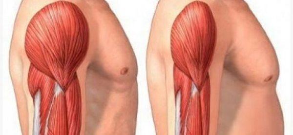 Полимиозит – разновидность патологии, при которой не наблюдается кожных заболеваний