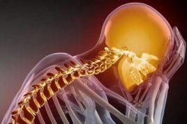Главным фактором риска для развития ВБН является остеохондроз шеи