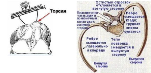 Величину торсии позвонков определяют с помощью сколиозометра Шультесса