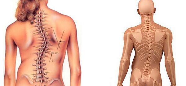 Риск развития сколиоза 2 степени увеличивают пребывание в неудобной позе, перенос тяжестей или дефицит необходимых микроэлементов