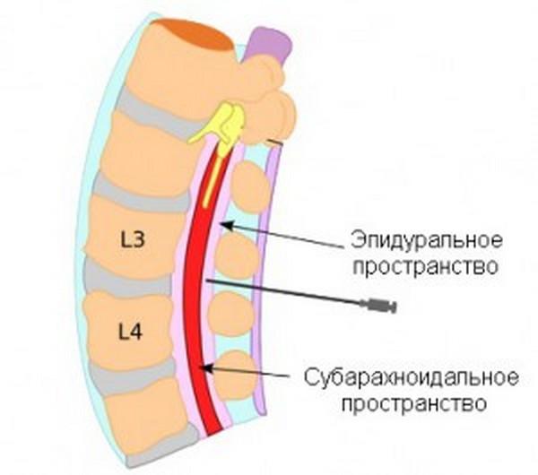 Спинальная анестезия при грыже thumbnail