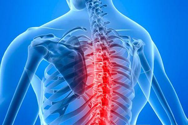 Защемление нервов может случиться на почве остеохондроза, кифоза, грыжи