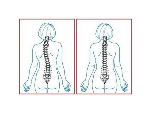 Сколиотическая осанка может развиться в результате травмы, операции или заболеваний внутренних органов
