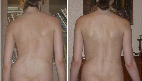 Сколиоз второй степени определить нетрудно – у больного отмечается явная асимметрия ребер и плеч
