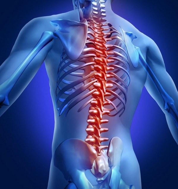 Дисплазией позвоночника называют какое-либо отклонение в развитии хребта