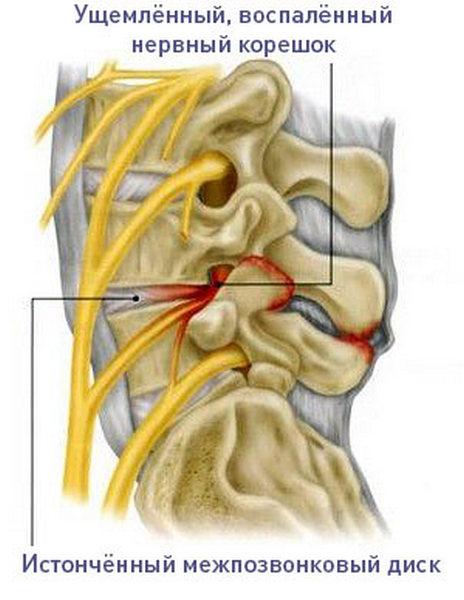 На фоне остеохондроза могут развиться воспаления нервных корешков