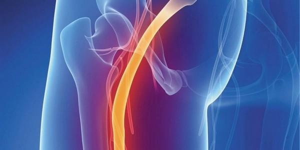 Воспаление седалищного нерва сопровождается многочисленными симптомами, которые явно указывают на саму патологию