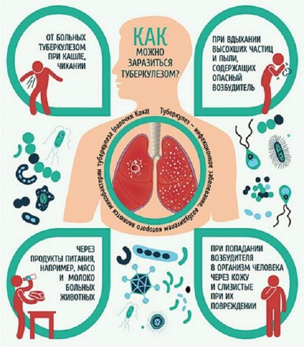 Пути заражения туберкулезом