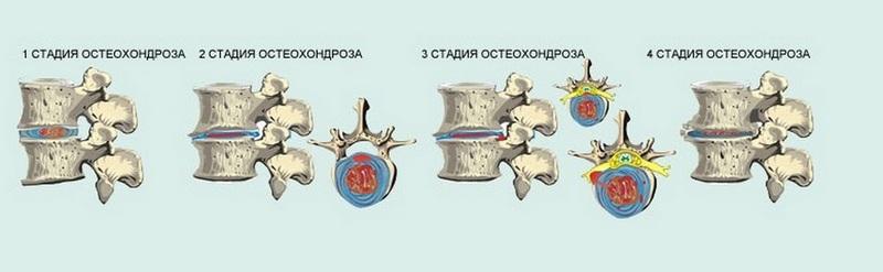 Выделяют несколько степеней остеохондроза