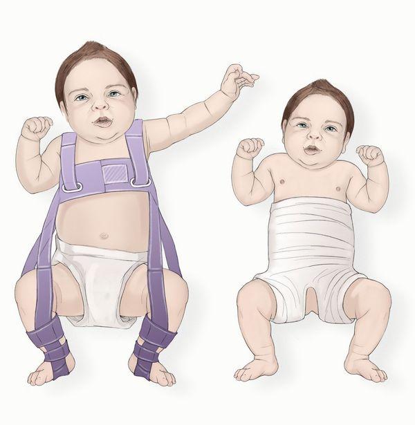 Если патология обнаружена у новорожденного, избавиться от нее будет не слишком сложно