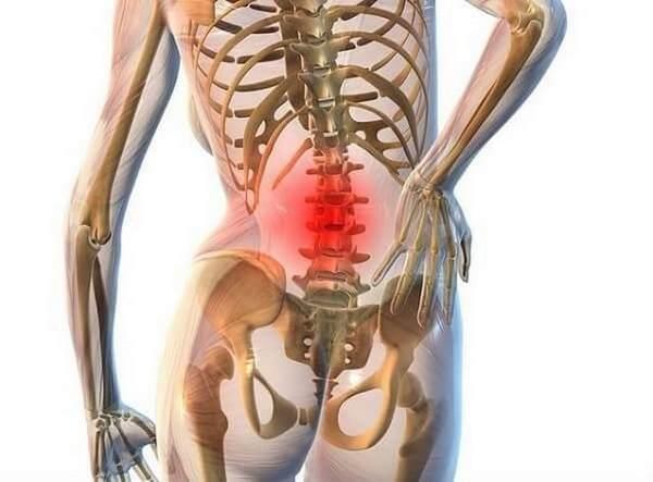 При отсутствии терапии сколиоза могут развиться другие патологии, например, остеохондроз или деформация внутренних органов