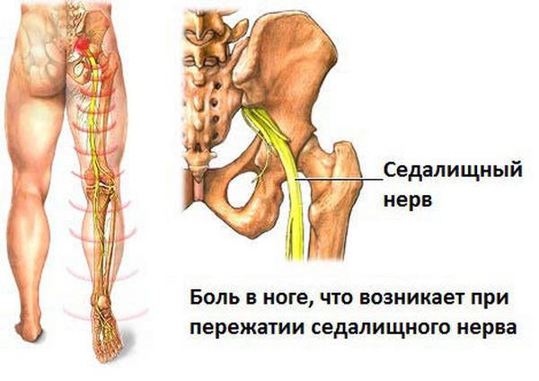 Воспаление может затронуть и седалищный нерв, что часто приводит к очень тяжелым осложнениям