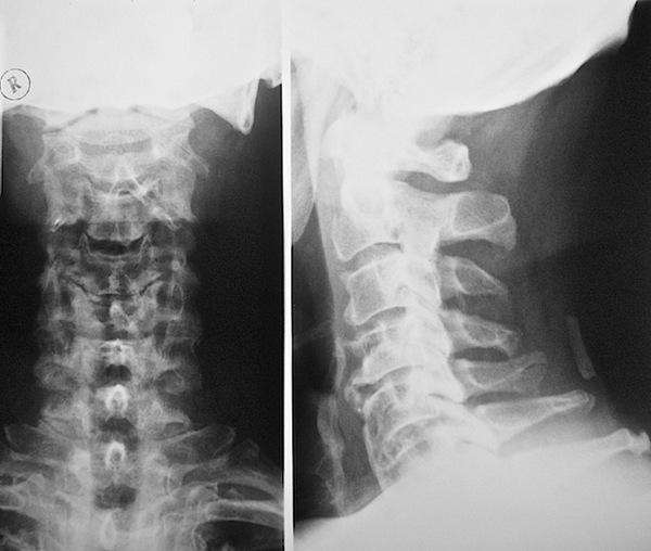 Чаще всего рентген назначают при остеохондрозе шеи