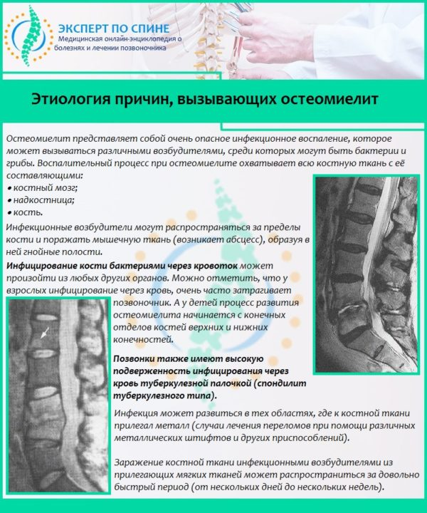 Этиология причин, вызывающих остеомиелит