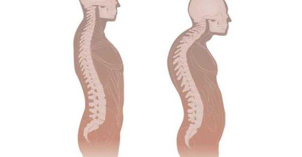 Одним из последствий туберкулеза позвоночника является развитие кифоза