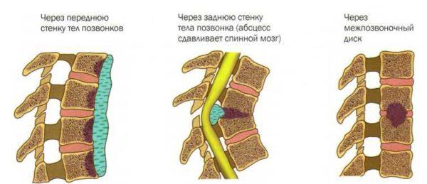 Типы поражения позвоночника при туберкулезе