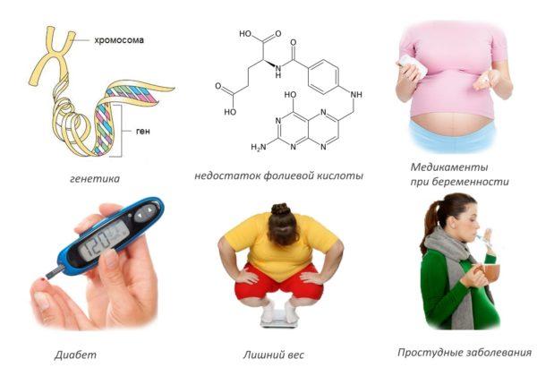 Самые распространенные факторы, провоцирующие нарушения развития нервной трубки