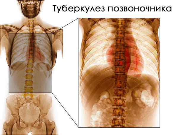 Длительное время туберкулез позвоночника развивается без выраженных симптомов