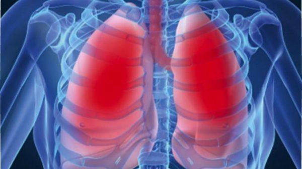 Одним из противопоказаний к упражнениям является туберкулез легких