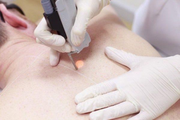 Вылечить фурункулы помогает инфракрасное излучение