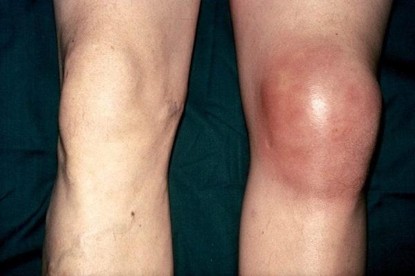 Внешние признаки инфекционного поражения коленного сустава