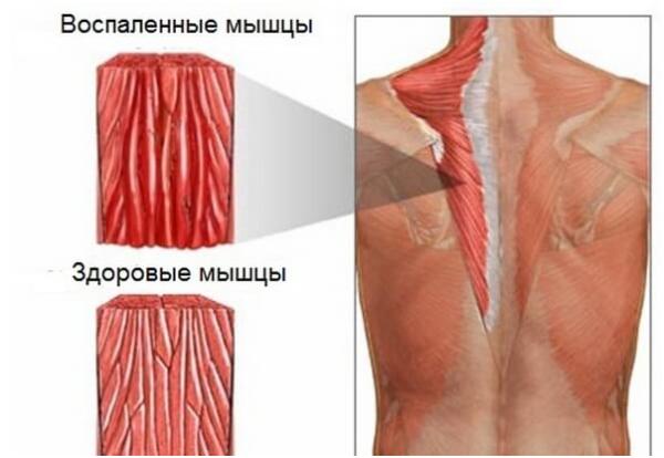 Воспаленные мышцы при миозите