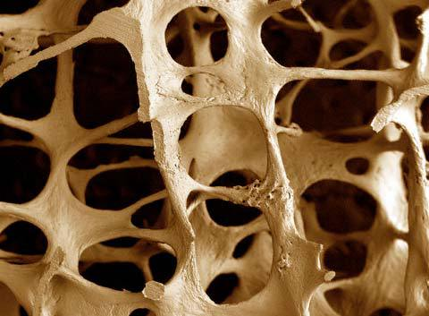 Методы лечения диффузного остеопороза и прогнозы на будущее