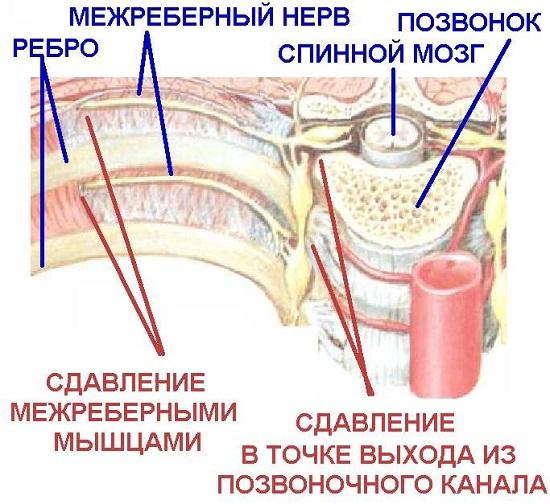 Защемление нерва в грудном отделе при межреберной невралгии