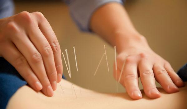Иглоукалывание - вспомогательный метод лечения плоской спины