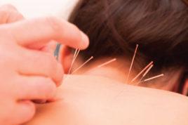 Иглоукалывание способствует выработке серотонина