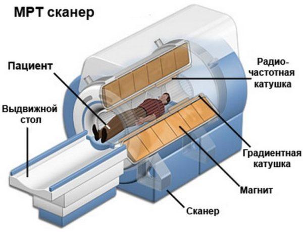 Как устроен аппарат МРТ