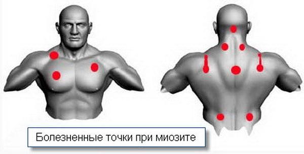 Места локализации болезненных точек при миозите