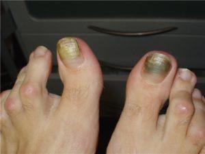На фото заболевание ногтей, вызванное синегнойной палочкой (онихия псевдомоназная)