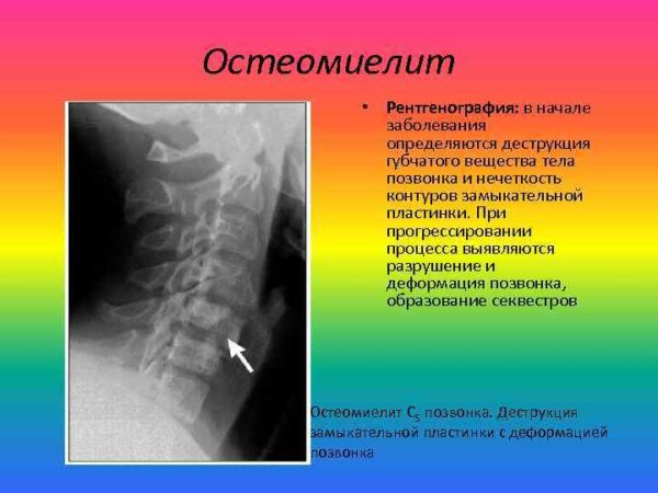 Остеомиелит позвоночника на рентгене