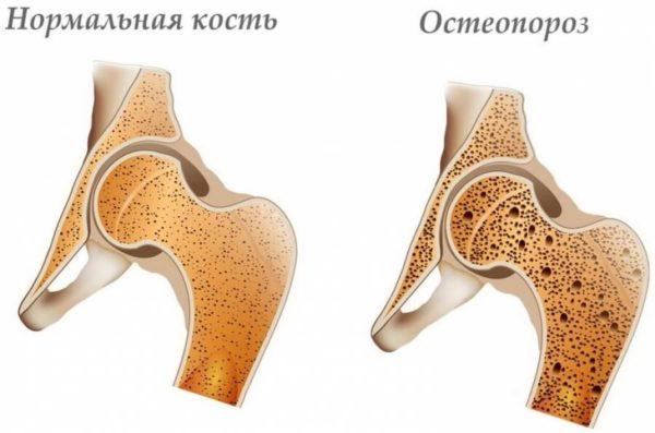 Пример больной кости при остеопорозе