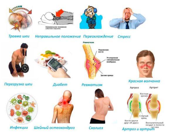 Причины развития миозита