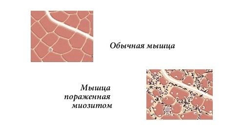Так выглядит мышца пораженная миозитом