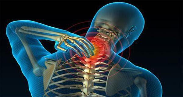 Хондроз часто поражает область шеи