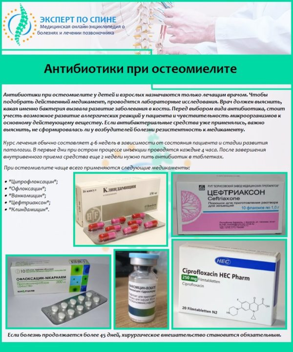 Антибиотики при остеомиелите
