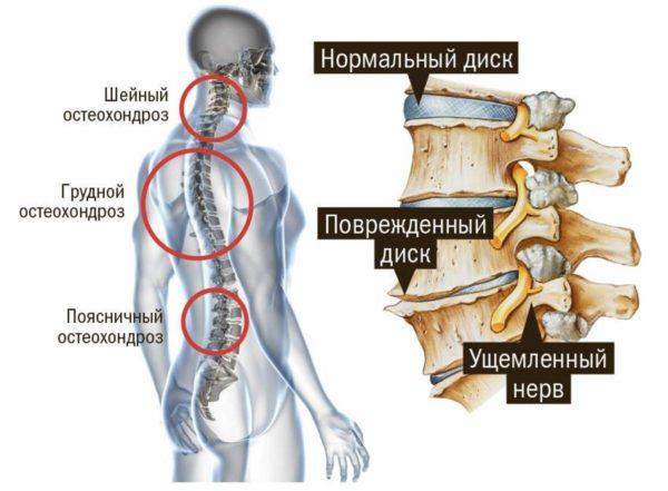 Диски позвоночника при остеохондрозе