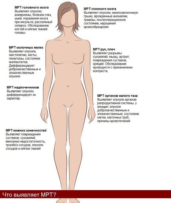 Какие заболевания выявляют с помощью МРТ