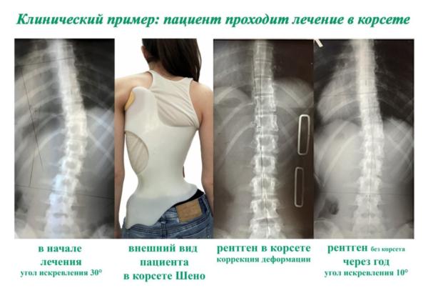 Лечение искривления позвоночника с помощью корсета Шено
