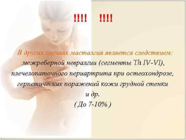 Мастопатия как следствие межреберной невралгии