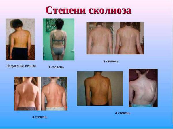 Пациенты с разными степенями развития заболевания