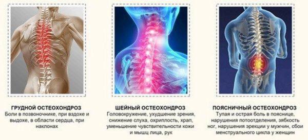 Признаки остеохондроза