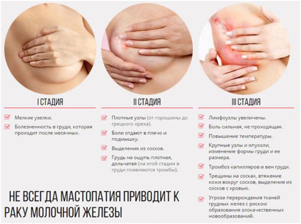 Признаки развития мастопатии