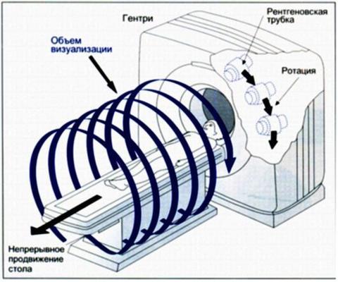Принцип работы спиральной компьютерной томографии