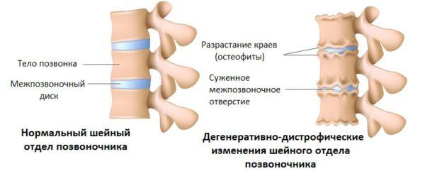 Природа дегенеративно-дистрофических изменений шейного отдела позвоночника