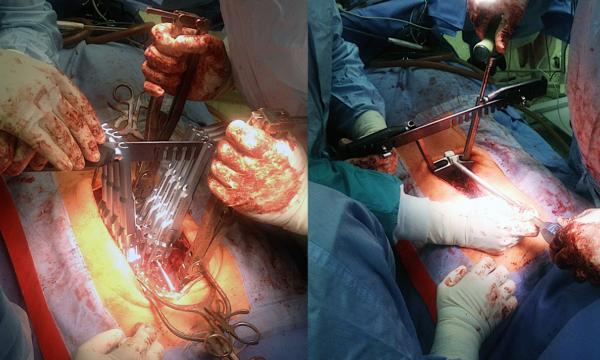 Проведение операции на позвоночник
