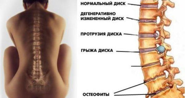 Распространенные болезни позвоночника